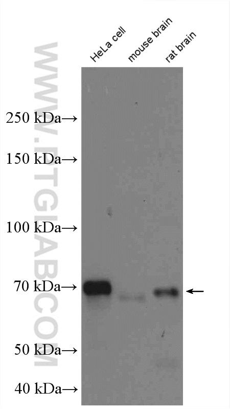 various lysates were subjected to SDS PAGE followed by western blot with 10837-1-AP (OPTN antibody) at dilution of 1:6000  incubated at room temperature for 1.5 hours