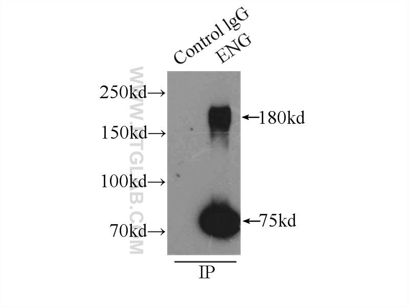 IP Result of anti-ENG (IP:10862-1-AP, 3ug; Detection:10862-1-AP 1:300) with  mouse lung tissue lysate 4000ug.