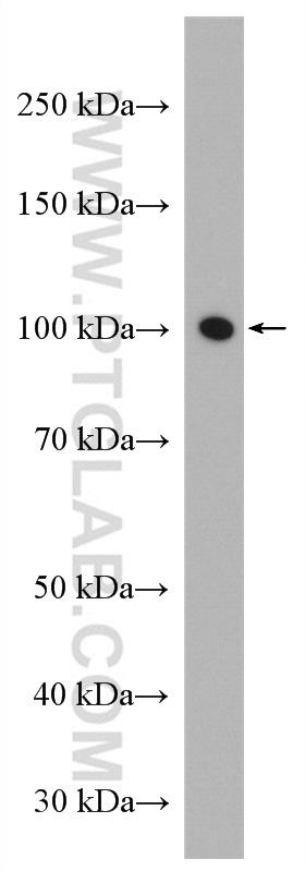 C2C12 cell were subjected to SDS PAGE followed by western blot with 10868-1-AP (ATP1A3 antibody) at dilution of 1:1500 incubated at room temperature for 1.5 hours