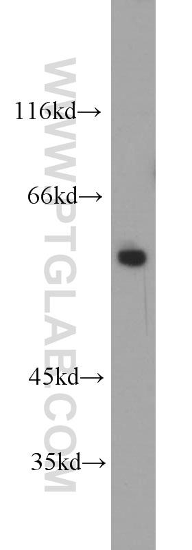 HEK-293 cells were subjected to SDS PAGE followed by western blot with 10872-1-AP(FBXO5 antibody) at dilution of 1:800  incubated at room temperature for 1.5 hours