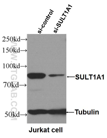 WB result of SULT1A1 antibody (10911-2-AP, 1:600) with si-control and si-SULT1A1 transfected Jurkat cells.