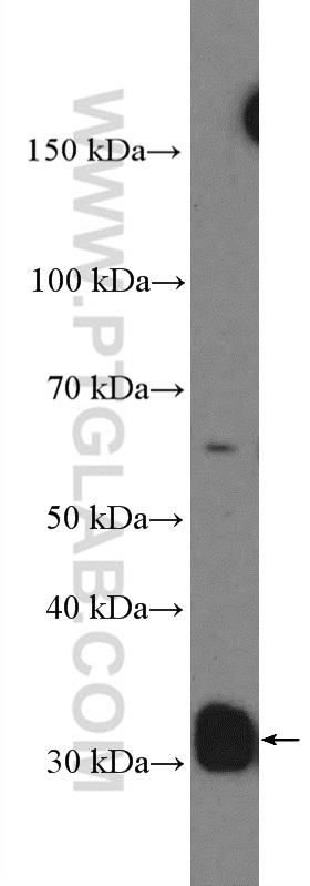 NIH/3T3 cells were subjected to SDS PAGE followed by western blot with 10934-1-AP( CCND2 Antibody) at dilution of 1:600  incubated at room temperature for 1.5 hours