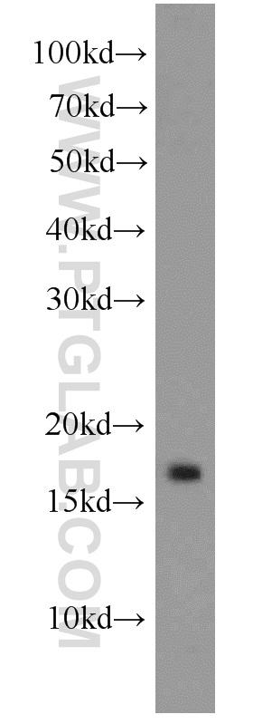 rat brain tissue were subjected to SDS PAGE followed by western blot with 11010-1-AP(ATG8L antibody) at dilution of 1:1000  incubated at room temperature for 1.5 hours