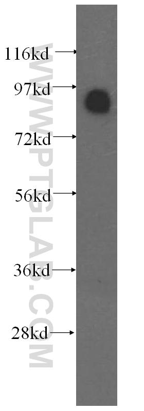 HeLa cells were subjected to SDS PAGE followed by western blot with 11096-1-AP(OSBP antibody) at dilution of 1:800  incubated at room temperature for 1.5 hours