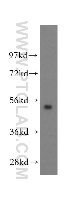 human liver tissue were subjected to SDS PAGE followed by western blot with 11161-1-AP(FBXO9 antibody) at dilution of 1:300  incubated at room temperature for 1.5 hours