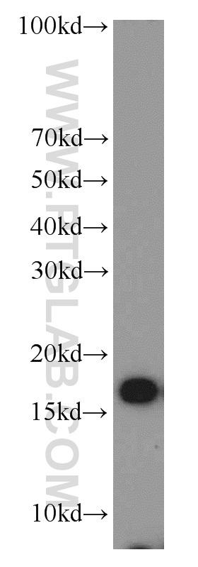 MCF7 cells were subjected to SDS PAGE followed by western blot with 11242-1-AP(COXIV antibody) at dilution of 1:1000  incubated at room temperature for 1.5 hours