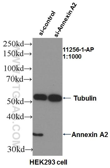 WB result of Annexin A2 (11256-1-AP, 1:1000) with si-Control and si-Annexin A2 transfected HEK293 cells.