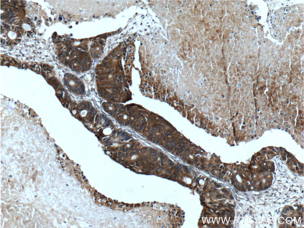 Immunohistochemistry of paraffin-embedded human pancreas cancer tissue slide using 11283-1-AP( TMPRSS4 Antibody) at dilution of 1:200 (under 10x lens).
