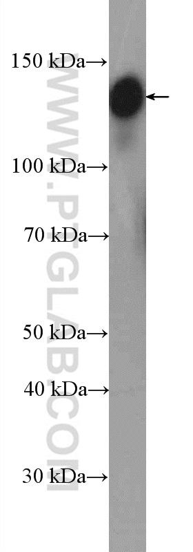 HEK-293 cells were subjected to SDS PAGE followed by western blot with 11308-1-AP (GOLGA2/GM130 antibody) at dilution of 1:6000  incubated at room temperature for 1.5 hours