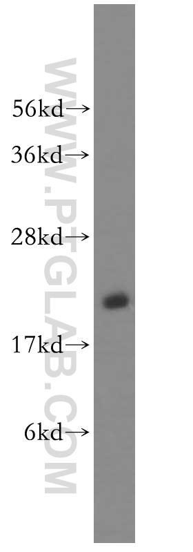 human brain tissue were subjected to SDS PAGE followed by western blot with 11329-2-AP(RAB35 antibody) at dilution of 1:600  incubated at room temperature for 1.5 hours