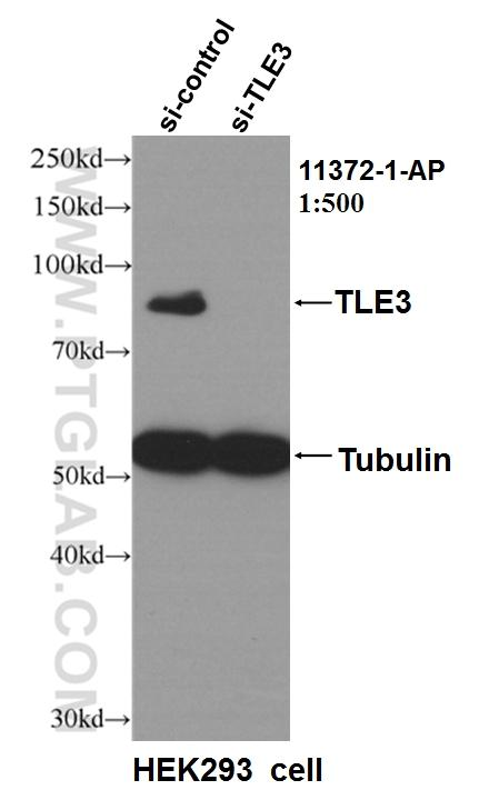 WB result of TLE3 antibody (11372-1-AP, 1:500) with si-Control and si-TLE3 transfected HEK293 cells.