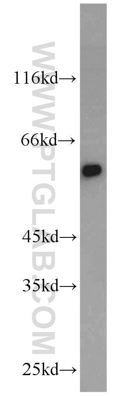 mouse heart tissue were subjected to SDS PAGE followed by western blot with 11435-1-AP(CRBN antibody) at dilution of 1:1000  incubated at room temperature for 1.5 hours