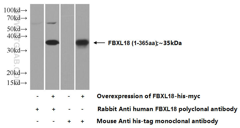Transfected HEK-293 cells were subjected to SDS PAGE followed by western blot with 11556-1-AP( FBXL18 Antibody) at dilution of 1:1000  incubated at room temperature for 1.5 hours