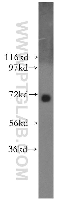 Y79 cells were subjected to SDS PAGE followed by western blot with 11592-1-AP(NUAK2 antibody) at dilution of 1:400  incubated at room temperature for 1.5 hours