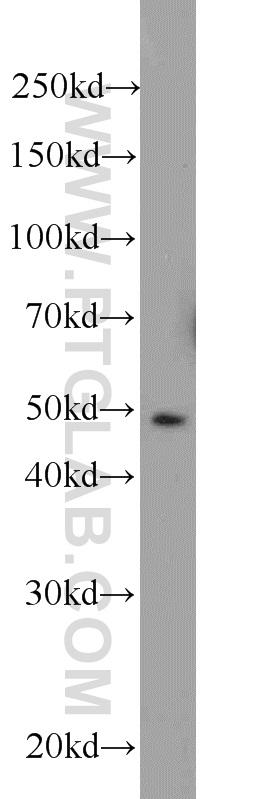 HeLa cells were subjected to SDS PAGE followed by western blot with 11630-1-AP(MIG6; ERRFI1 antibody) at dilution of 1:1000  incubated at room temperature for 1.5 hours