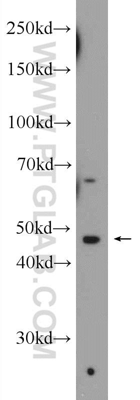 Jurkat cells were subjected to SDS PAGE followed by western blot with 11720-1-AP( SSB Antibody) at dilution of 1:300  incubated at room temperature for 1.5 hours
