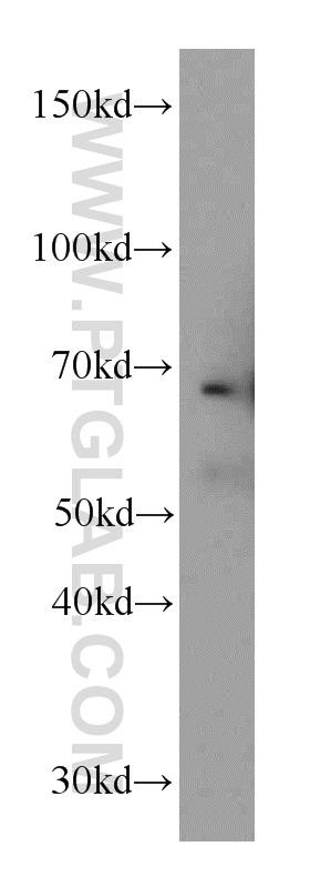 mouse heart tissue were subjected to SDS PAGE followed by western blot with 12188-1-AP(FBLN5 antibody) at dilution of 1:400  incubated at room temperature for 1.5 hours