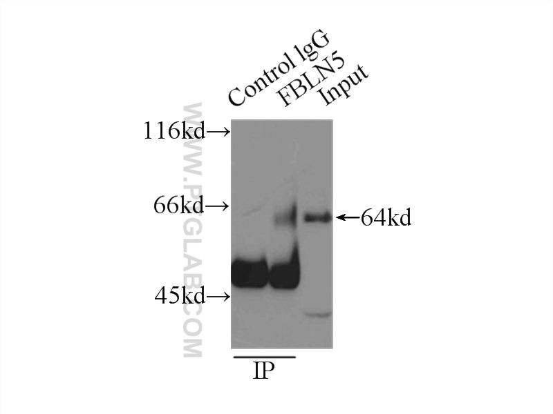 IP Result of anti-FBLN5 (IP:12188-1-AP, 3ug; Detection:12188-1-AP 1:300) with  mouse heart tissue lysate 8000ug.