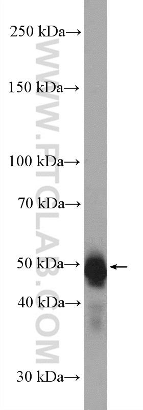 mouse embryo tissue were subjected to SDS PAGE followed by western blot with 12323-1-AP (PAX6 antibody) at dilution of 1:600  incubated at room temperature for 1.5 hours