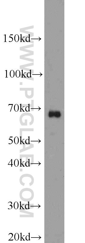HepG2 cells were subjected to SDS PAGE followed by western blot with 12586-1-AP(SAMHD1 antibody) at dilution of 1:1000  incubated at room temperature for 1.5 hours