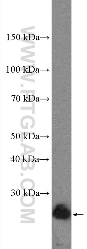 HL-60 cells were subjected to SDS PAGE followed by western blot with 12789-1-AP( BCL2 Antibody) at dilution of 1:2000  incubated at room temperature for 1.5 hours