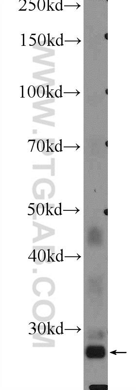 HepG2 cells were subjected to SDS PAGE followed by western blot with 12844-1-AP( FBXO17 Antibody) at dilution of 1:300  incubated at room temperature for 1.5 hours