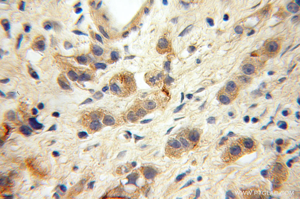Immunohistochemical of  paraffin-embedded human gliomas using 12855-1-AP(GLS antibody) at dilution of 1:100 (under 10x lens)