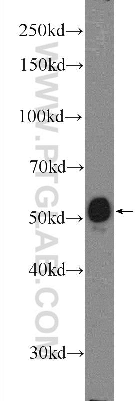 mouse heart tissue were subjected to SDS PAGE followed by western blot with 12866-1-AP( FBXO32 Antibody) at dilution of 1:600  incubated at room temperature for 1.5 hours