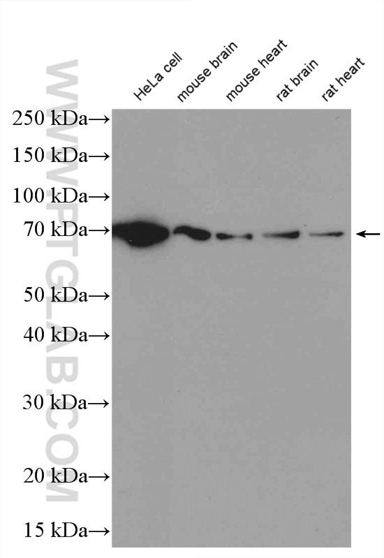 Lysates of various cell lines and tissues were subjected to SDS PAGE followed by western blot with 12987-1-AP (Lamin B1 antibody) at dilution of 1:3000  incubated at room temperature for 1.5 hours