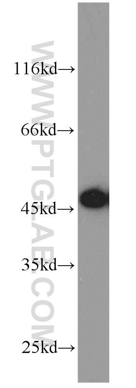 Jurkat cells were subjected to SDS PAGE followed by western blot with 13130-1-AP(ORAI1 antibody) at dilution of 1:800  incubated at room temperature for 1.5 hours