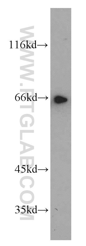 Jurkat cells were subjected to SDS PAGE followed by western blot with 13372-1-AP(TFEB antibody) at dilution of 1:1000  incubated at room temperature for 1.5 hours