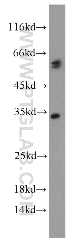 HepG2 cells were subjected to SDS PAGE followed by western blot with 13423-1-AP(CASP8 antibody) at dilution of 1:1000  incubated at room temperature for 1.5 hours