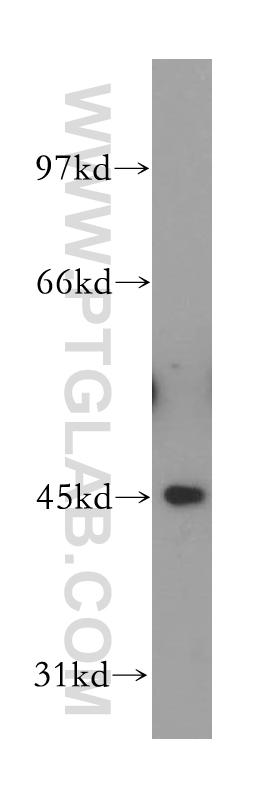 HeLa cells were subjected to SDS PAGE followed by western blot with 13606-1-AP(FBXO22 antibody) at dilution of 1:500  incubated at room temperature for 1.5 hours