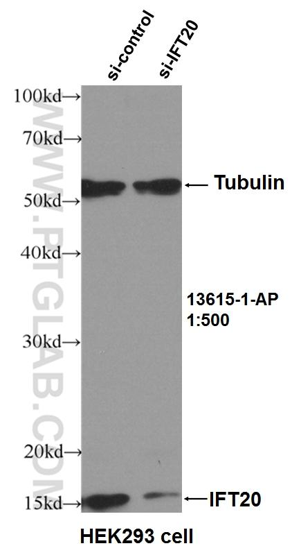 WB result of IFT20 antibody (13615-1-AP, 1:500) with si-Control and si-IFT20 transfected HEK293 cells.