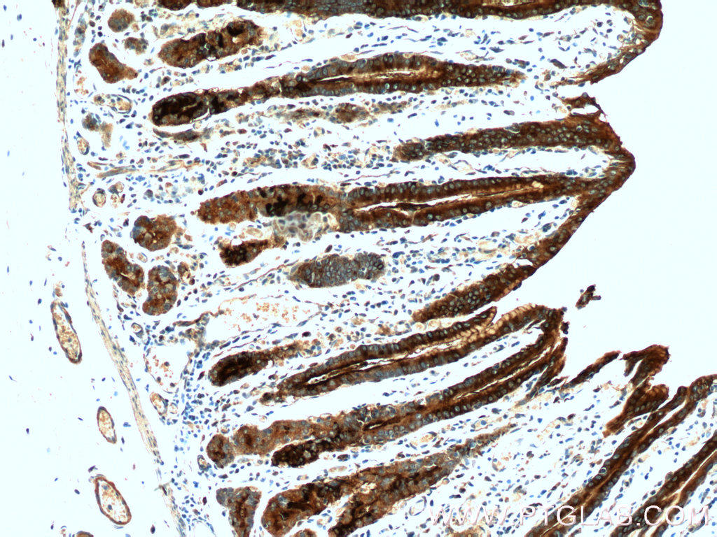 Immunohistochemistry of paraffin-embedded human stomach tissue slide using 13681-1-AP( TFF2 Antibody) at dilution of 1:1000 (under 10x lens).