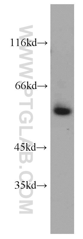 HEK-293 cells were subjected to SDS PAGE followed by western blot with 13687-1-AP(VEGFR1, FLT1 antibody) at dilution of 1:800  incubated at room temperature for 1.5 hours