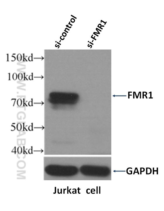 Jurkat細胞をFMR1を標的とするsiRNAまたはsiRNAコントロールで処理し、FMR1抗体 (カタログ番号:13755-1-AP、希釈倍率 1:1500)でウェスタンブロットを行った。FMR1 遺伝子は、分子量 59-72 kDa の複数のアイソフォームを発現します。