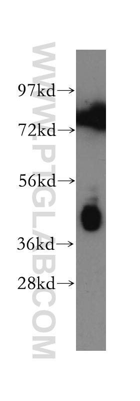 HepG2 cells were subjected to SDS PAGE followed by western blot with 13797-1-AP(PTX3 antibody) at dilution of 1:300  incubated at room temperature for 1.5 hours