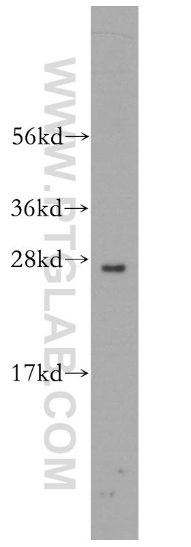 mouse uterus tissue were subjected to SDS PAGE followed by western blot with 13844-1-AP(RND2 antibody) at dilution of 1:300  incubated at room temperature for 1.5 hours