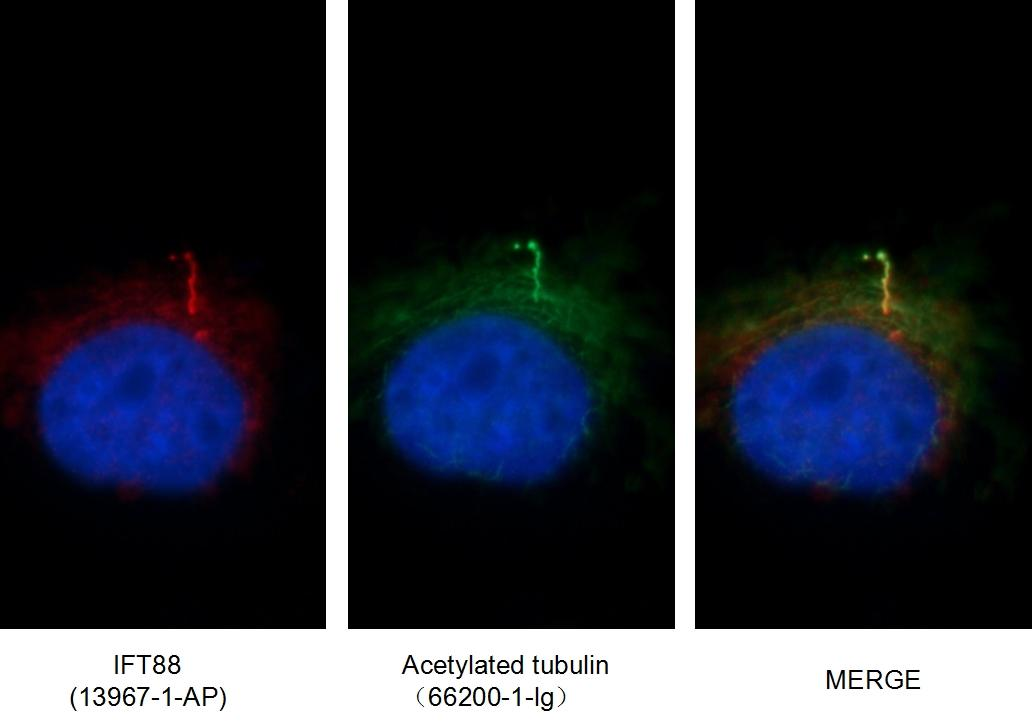 Immunofluorescent images of MDCK cells stained with IFT88 rabbit pAb (13967-1-AP) and acetylated tubulin mouse mAb (66200-1-Ig) at dilution of 1:50, further stained with  Alexa Fluor 594-congugated AffiniPure Goat Anti-Rabbit IgG(H+L) for 13967-1-AP, and Alexa Fluor 488-congugated AffiniPure Goat anti-Mouse IgG(H+L) for 66200-1-Ig.