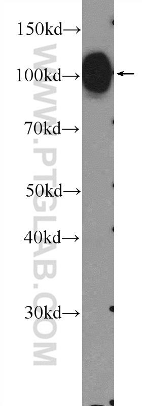 mouse spinal cord tissue were subjected to SDS PAGE followed by western blot with 14386-1-AP( MAG Antibody) at dilution of 1:600  incubated at room temperature for 1.5 hours