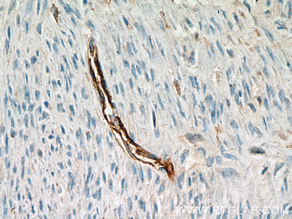 Immunohistochemical of  paraffin-embedded human hysteromyoma using 14486-1-AP(CD34 antibody) at dilution of 1:50 (under 40x lens)