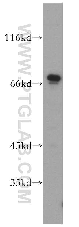 Jurkat cells were subjected to SDS PAGE followed by western blot with 14508-1-AP(SREBF2 antibody) at dilution of 1:1000  incubated at room temperature for 1.5 hours