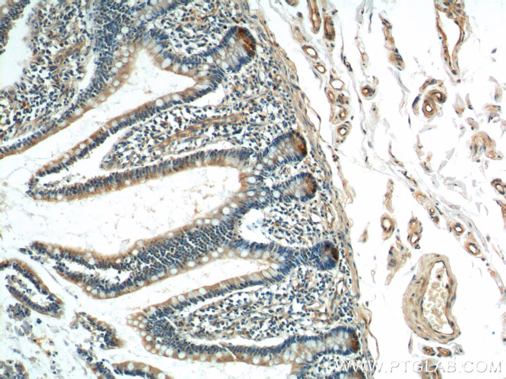 Immunohistochemistry of paraffin-embedded human small intestine tissue slide using 15013-1-AP( Lysozyme Antibody) at dilution of 1:200 (under 10x lens)