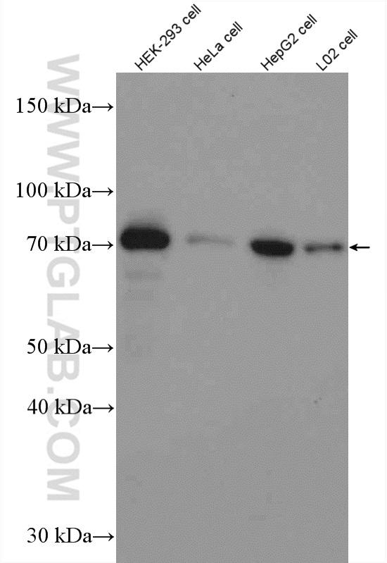 Various lysates were subjected to SDS PAGE followed by western blot with 15073-1-AP (METTL3 antibody) at dilution of 1:1000  incubated at room temperature for 1.5 hours