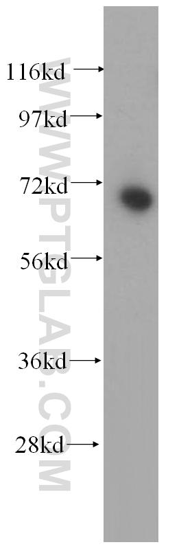 HEK-293 cells were subjected to SDS PAGE followed by western blot with 15073-1-AP(METTL3 antibody) at dilution of 1:400  incubated at room temperature for 1.5 hours