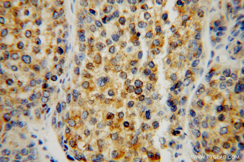 Immunohistochemical of  paraffin-embedded human liver cancer using 15168-1-AP(SIGMAR1 antibody) at dilution of 1:50 (under 40x lens)