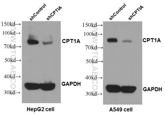 WB results of CPT1A antibody (1:1000) with shCPT1A-A549 and shCPT1A-HepG2 cells. shControl-A549 and shControl-HepG2 as positive control.