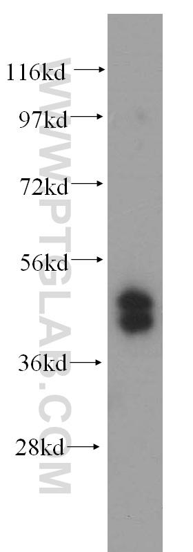 HepG2 cells were subjected to SDS PAGE followed by western blot with 15753-1-AP(TRBP antibody) at dilution of 1:1000  incubated at room temperature for 1.5 hours