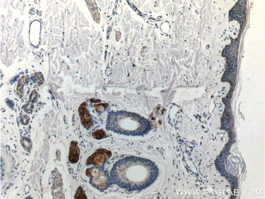 Immunohistochemistry of paraffin-embedded human skin tissue slide using 15939-1-AP( Piezo1 antibody at dilution of 1:200 (under 10x lens).